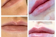 1ml-Lip-Fillers-before-after