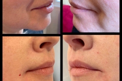 1ml-Nose-to-Mouth-Fillers-2