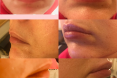 Lip-Fillers-by-Dr.-Roxana