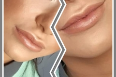 Beautiful full lips.   Lip-fillers