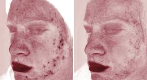 After 3 facials VISIA images show a reduction of inflamation